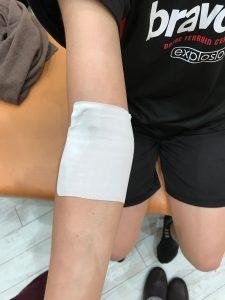 野球肘外側型(治療前1)
