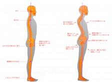 腰痛にもタイプがあるのはご存知ですか?
