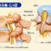 脊椎分離すべり症の症状