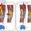 膝の痛み(前の部分、お皿の痛み)で悩まれていている患者様が来院されました。