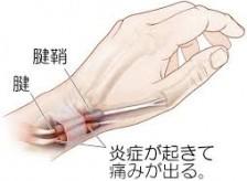 腱鞘炎を固定して治そうとしている治療家は無知ですよ