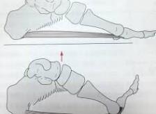 様々な症状に関係する足のウィンドラス機構