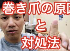 巻き爪の原因と対処法