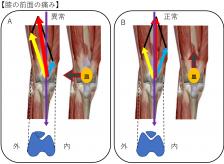 膝の痛みのメカニズム(膝の内側が痛い)