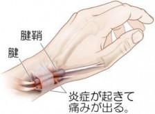 子どもの抱っこで…腱鞘炎(:_;)