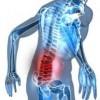 腰の痛み、足のシビレ。。。ヘルニア?狭窄症?
