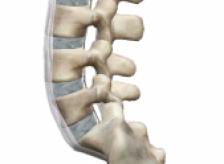 椎間板ヘルニアのメカニズムを知る事が症状改善には必須!!