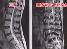 腰部脊柱管狭窄症の患者様が来院されました。